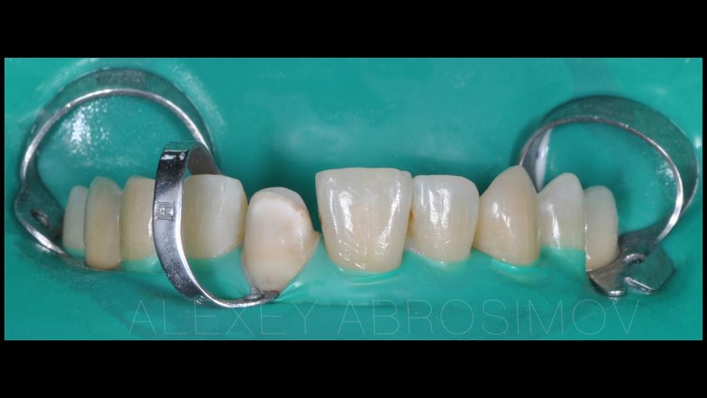 Как отбелить зубные протезы в домашних условиях без вреда